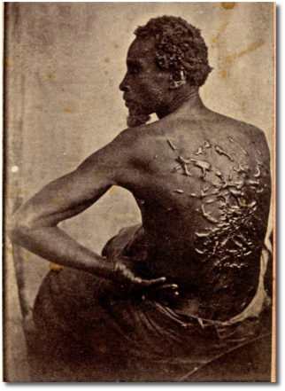 Scourged back of escaped Louisiana slave Gordon (1863)